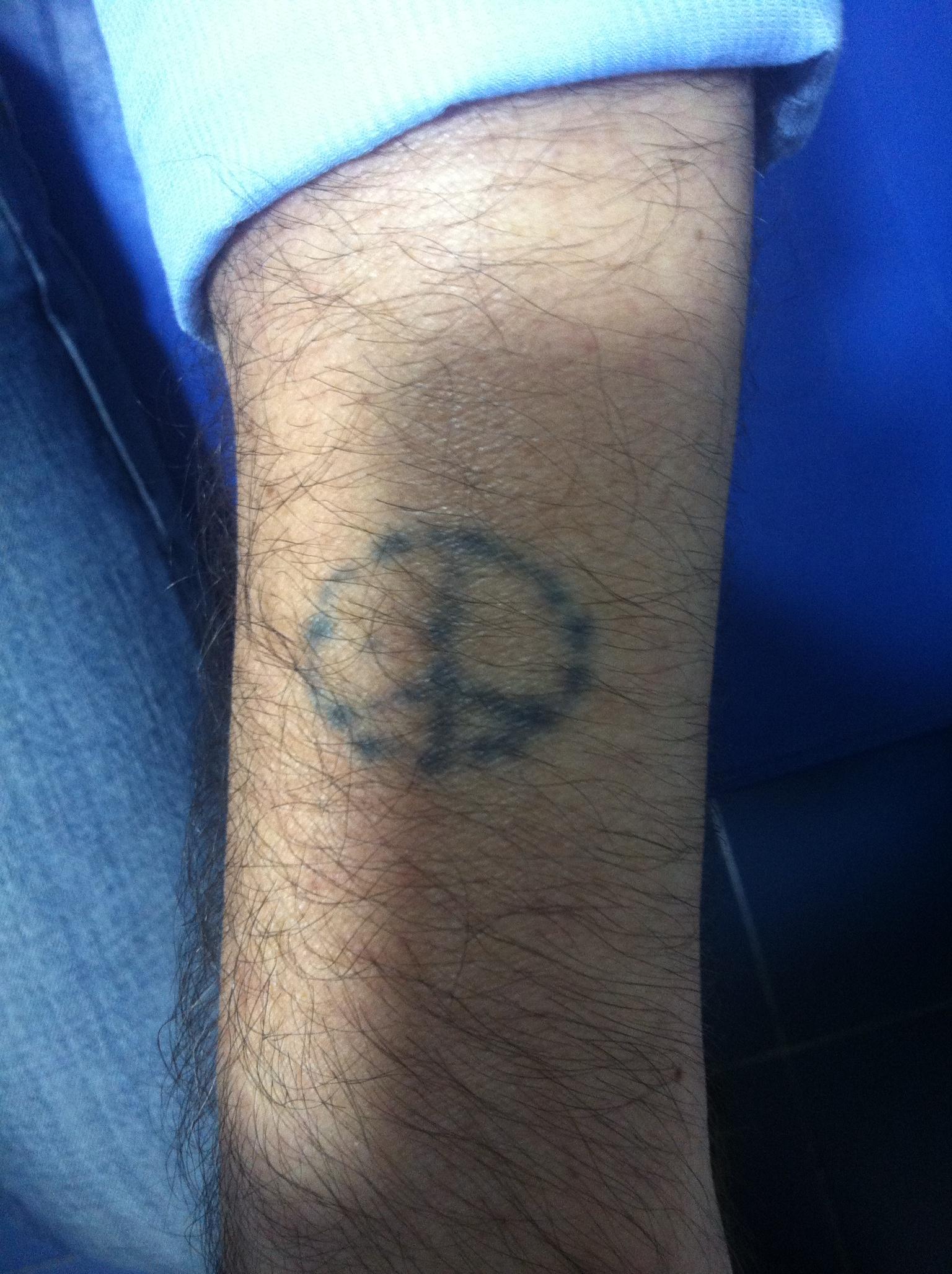 Borrado de tatuajes en Madrid