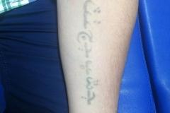 borrado-Borrado de tatuajes en Madrid-madrid-3