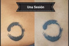 borrado-tBorrado de tatuajes en Madrid
