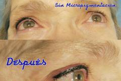 Micropigmentación en Madrid