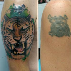 Tatuaje cover up de cabeza de tigre de bengala