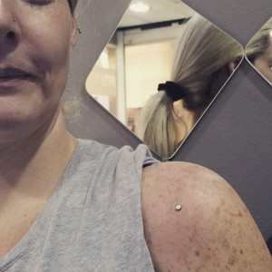 Piercing intradermal en brazo