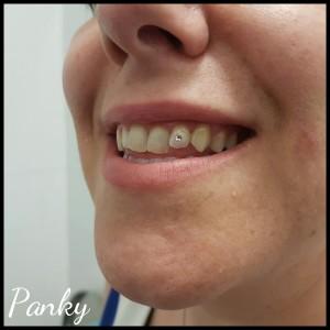 Piercing de diamante en diente