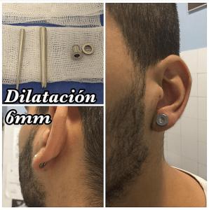 Dilataciones 6mm