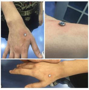 Piercing microdermal realizado en nuestro centro de de Vaguada de Madrid