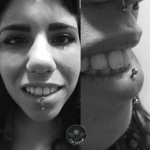 Piercing labret vertical realizado en nuestro centro Montera de Madrid